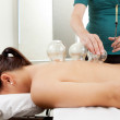 Cuppping Acupuncture Treatment on Female Back — Stock Photo #7289357